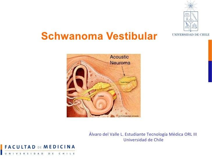 Schwanoma Vestibular Álvaro del Valle L. Estudiante Tecnología Médica ORL III  Universidad de Chile