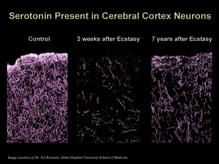 Image courtesy of Dr. GA Ricaurte, Johns Hopkins University School of Medicine