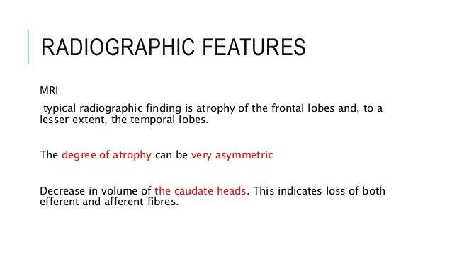 Mri Features Radiographic Features Mri Mri
