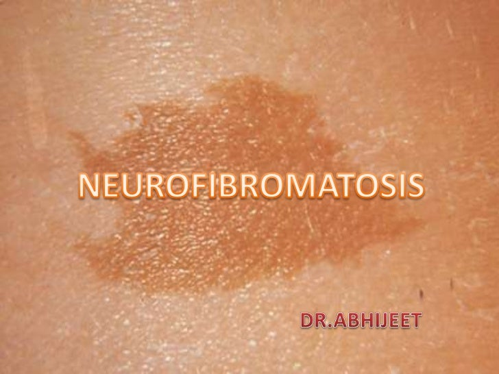 •    A Neurofibromatosis is an A.D.    genetically-inherited disorder in    which the nerve tissue grows    abnormally to ...