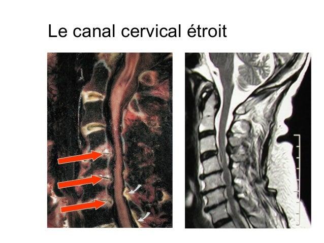 La culture physique après lopération sur le service cervical de lépine dorsale