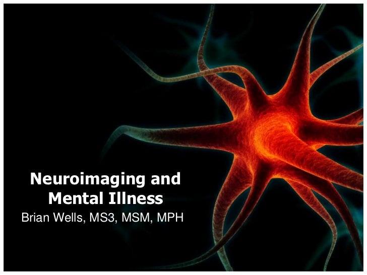 Neuroimaging and Mental Illness<br />Brian Wells, MS3, MSM, MPH<br />