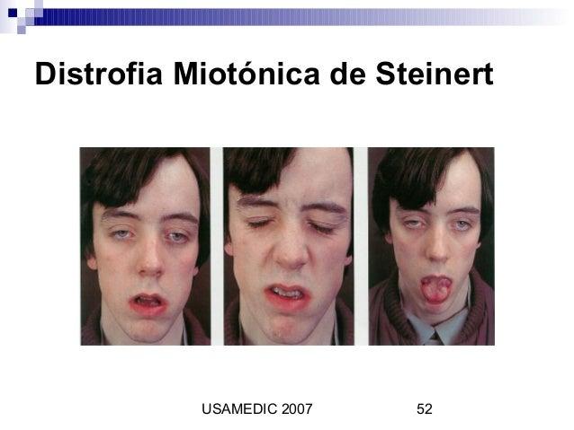 esteroides en hombres y mujeres