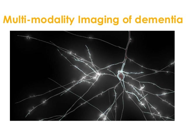 Neurology advanced dementia r lavayssiere