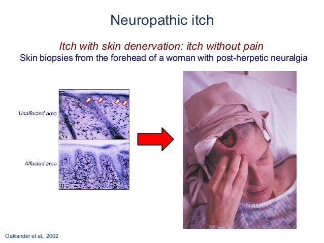 The Neurology of Itch - Medscape