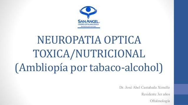NEUROPATIA OPTICA TOXICA/NUTRICIONAL (Ambliopía por tabaco-alcohol) Dr. José Abel Castañeda Ximello Residente 3er años Oft...