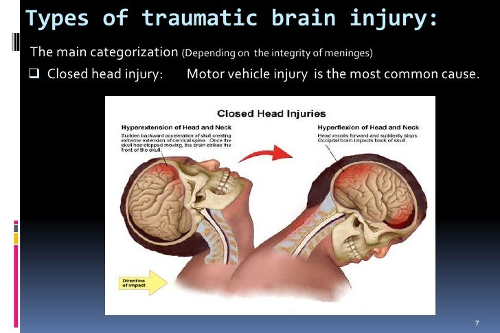 concussions the most common and least serious types of traumatic brain injury Learn about the symptoms of concussion (traumatic brain injury) including   could define a concussion as more or less severe and serious have not been  able to  of only one type of concussion, since the mechanism is to shake the  brain  of consciousness) or having a seizure after a head injury are not  common and.