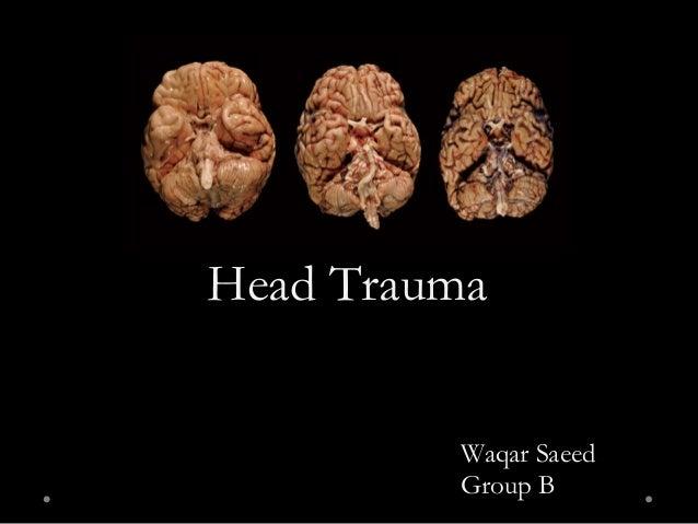 Head Trauma Waqar Saeed Group B