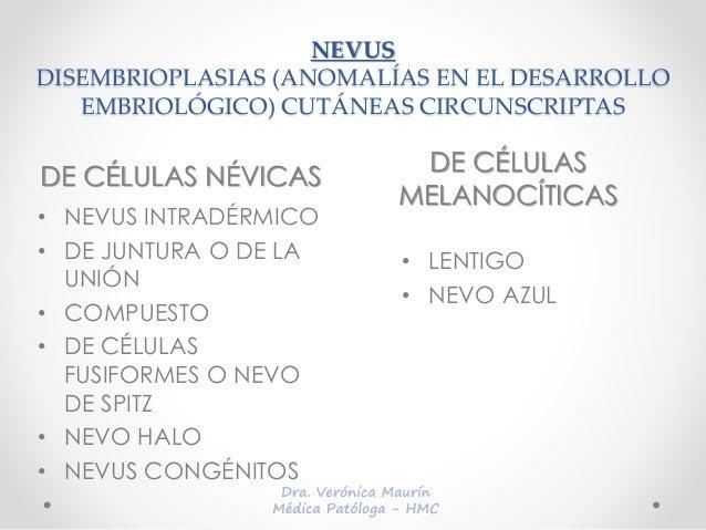 NEVUS DISEMBRIOPLASIAS (ANOMALÍAS EN EL DESARROLLO EMBRIOLÓGICO) CUTÁNEAS CIRCUNSCRIPTAS DE CÉLULAS NÉVICAS DE CÉLULAS MEL...