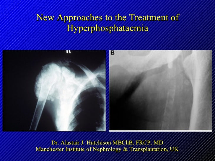 New Approaches to the Treatment of Hyperphosphataemia Dr. Alastair J. Hutchison MBChB, FRCP, MD Manchester Institute of Ne...