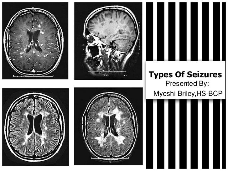 Types Of Seizures Myeshi Briley,HS-BCP