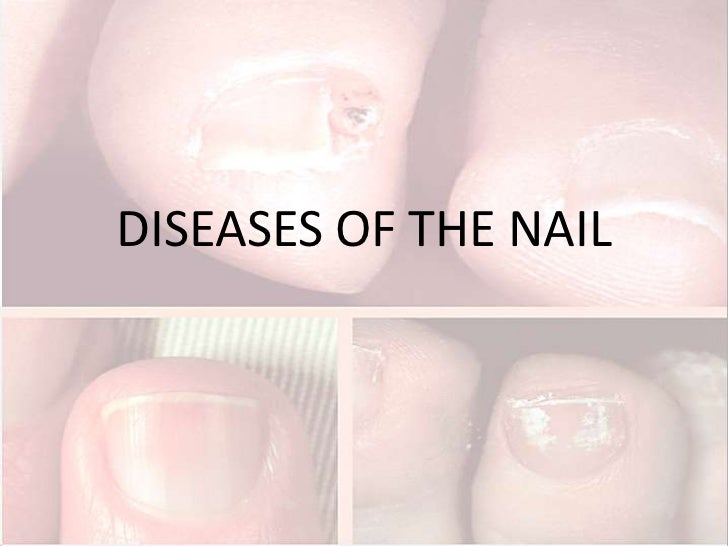 DISEASES OF THE NAIL