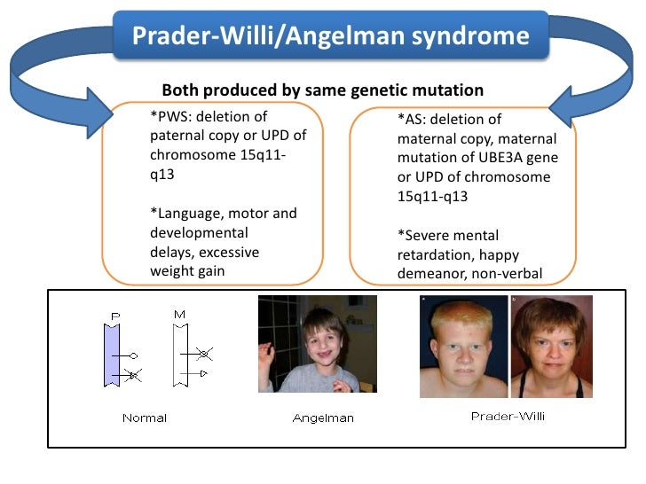 an analysis of angelman syndrome Rett syndrome, angelman syndrome, and several similar conditions cause neurodevelopmental concerns and often include high density snp microarray analysis.