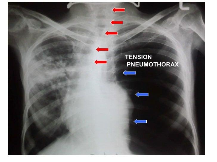 Tension Pneumothorax Tension Pneumothorax 10