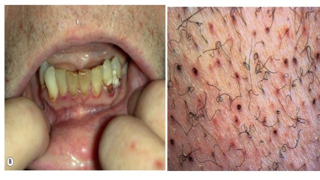 Pics For > Vitamin E Deficiency Skin