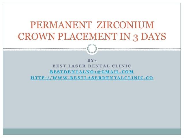 PERMANENT ZIRCONIUM CROWN IN 3 DAYS