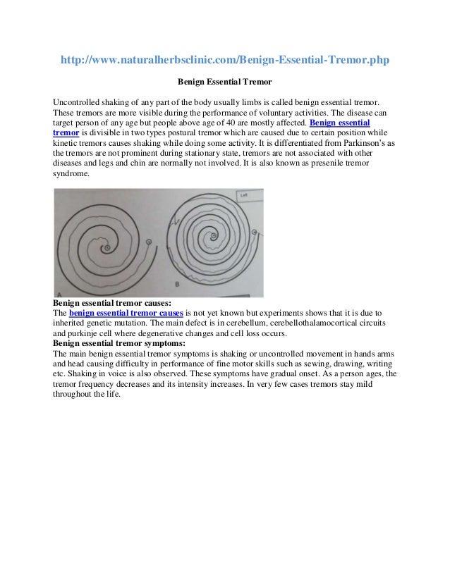 Benign essential tremor treatment, causes, symptoms and diagnosis