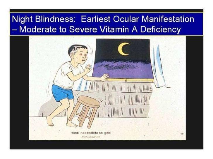 Night blindness (vitamin a)