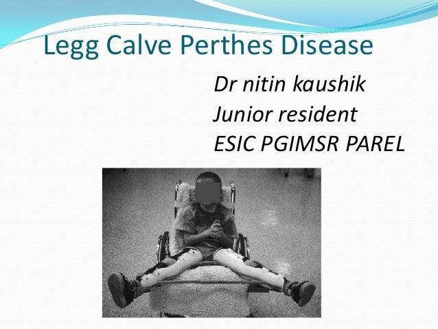 Legg Calve Perthes Disease             Dr nitin kaushik             Junior resident             ESIC PGIMSR PAREL