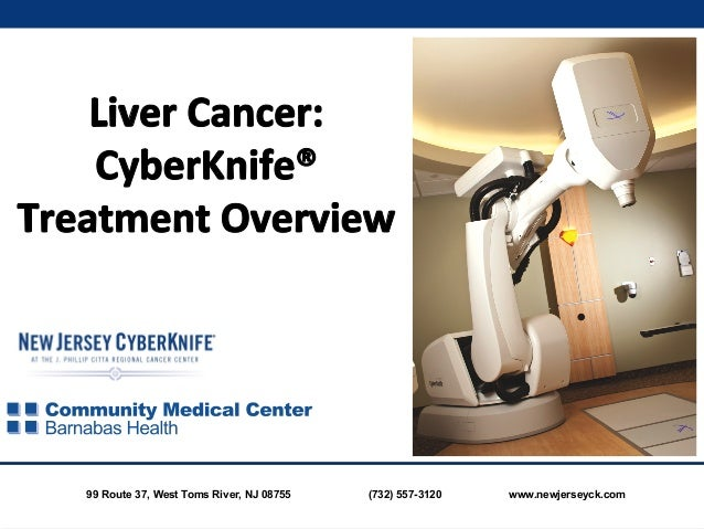 Liver Cancer: CyberKnife Treatment Overview