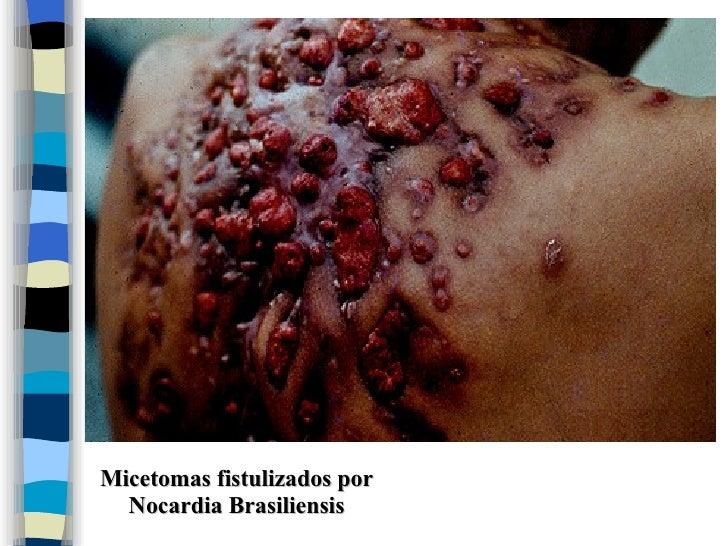 corticosteroides inhalados vademecum