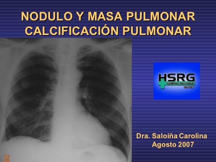 NODULO Y MASA PULMONAR CALCIFICACIÓN PULMONAR <ul><li>Dra. Saloiña Carolina </li></ul><ul><li>Agosto 2007 </li></ul>