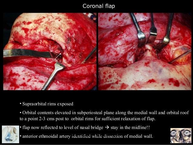 Supraorbital Rim Fracture Flap • Supraorbital Rims