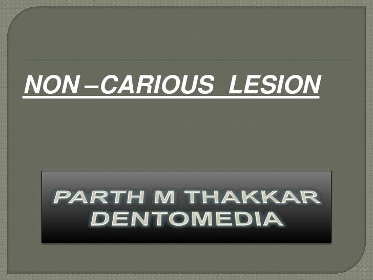 NON –CARIOUS LESION