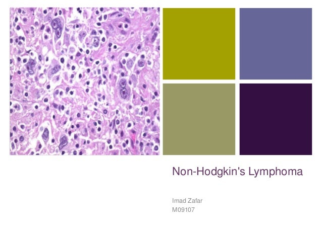 + Non-Hodgkin's Lymphoma Imad Zafar M09107