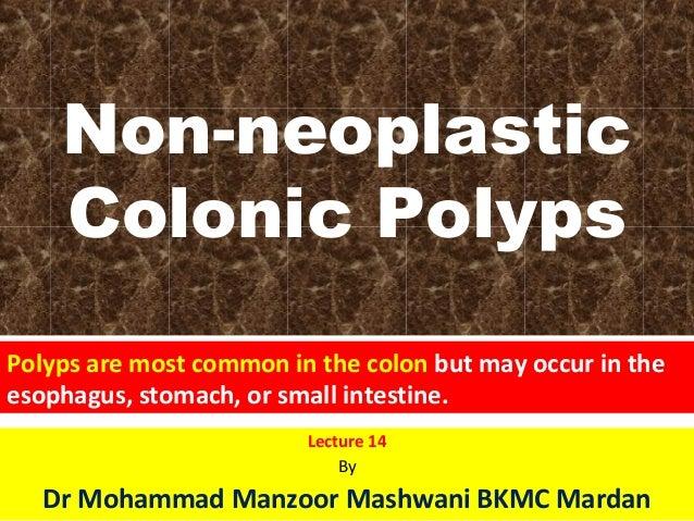 Non neoplasticColonic polyps
