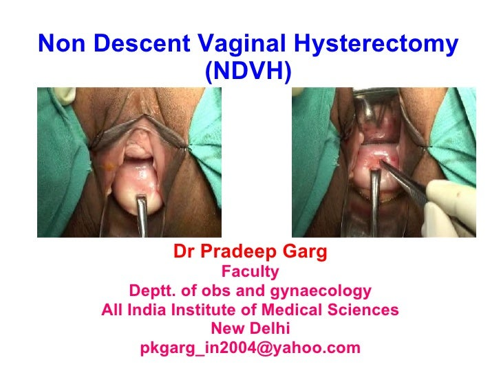 Non Descent Vaginal Hysterectomy (NDVH) Dr Pradeep Garg Faculty Deptt. of obs and gynaecology All India Institute of Medic...