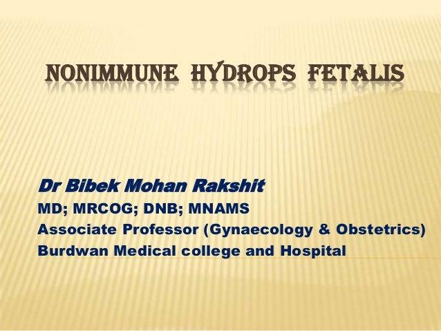 Nonimmune  hydrops  fetalis .  Dr B M Rakshit