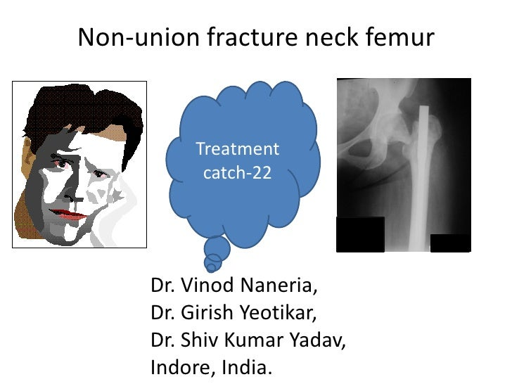 Non-union fracture neck femur         Treatment          catch-22     Dr. Vinod Naneria,     Dr. Girish Yeotikar,     Dr. ...