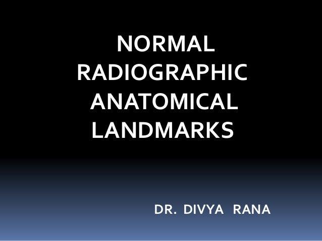 NORMAL RADIOGRAPHIC ANATOMICAL LANDMARKS DR. DIVYA RANA