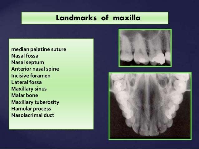 Nasal Septum Radiograph Nasal Fossa Nasal Septum