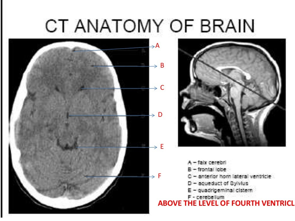 Ct brain anatomy radiology