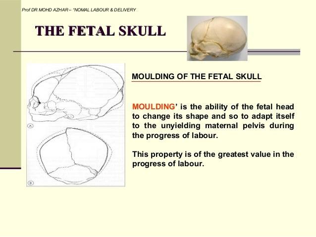 Fetal Skull Moulding Fetal Skull Moulding of