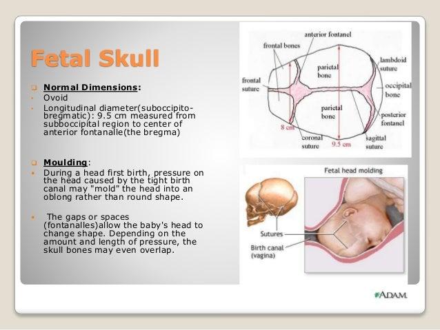 Fetal Skull Moulding Fetal Skull  Normal