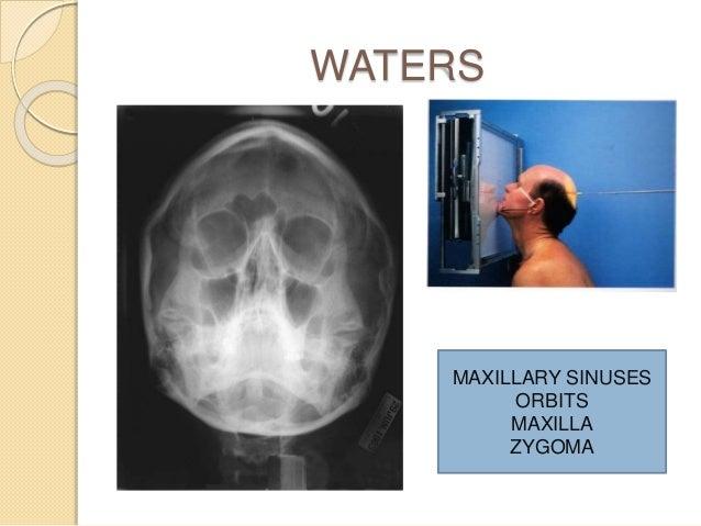 X ray anatomy