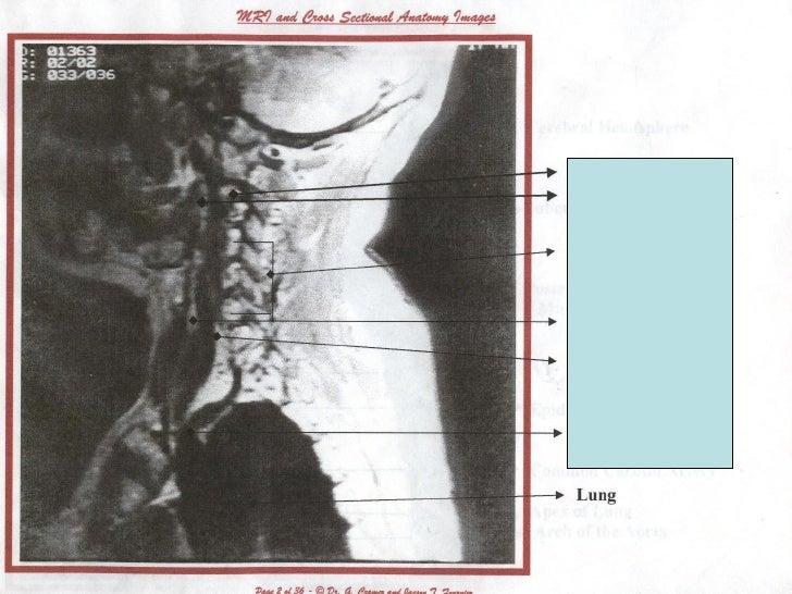 NUHS (NCC) Tri1 MRI Anatomy