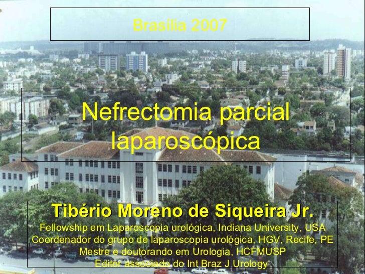 Nefrectomia parcial laparoscópica Tibério Moreno de Siqueira Jr. Fellowship em Laparoscopia urológica, Indiana University,...