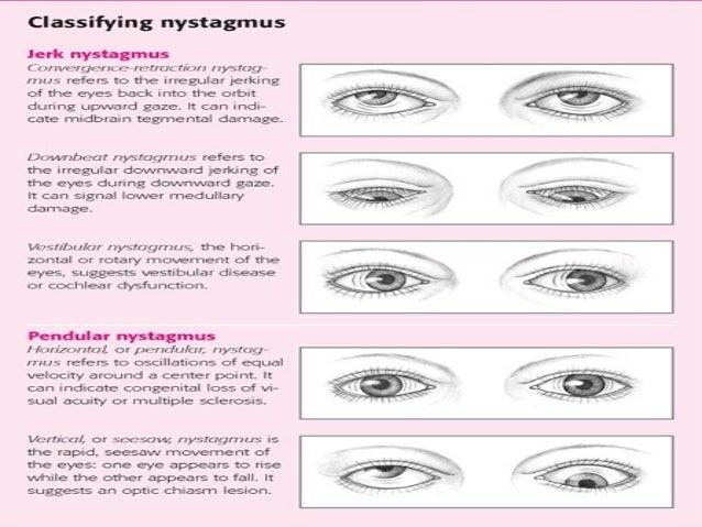 Nystagmus By Yehia Matter
