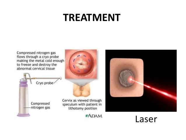cervical treatment