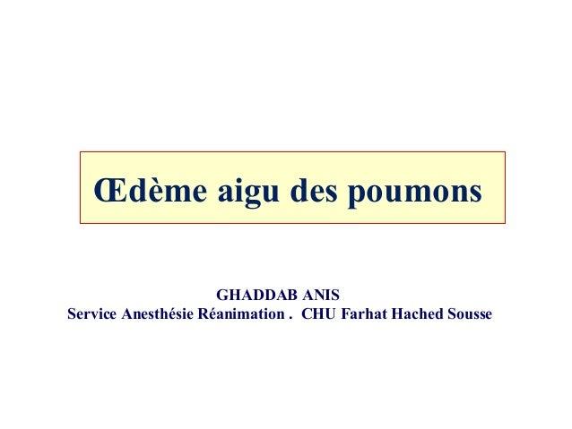 Œdème aigu des poumons GHADDAB ANIS Service Anesthésie Réanimation . CHU Farhat Hached Sousse