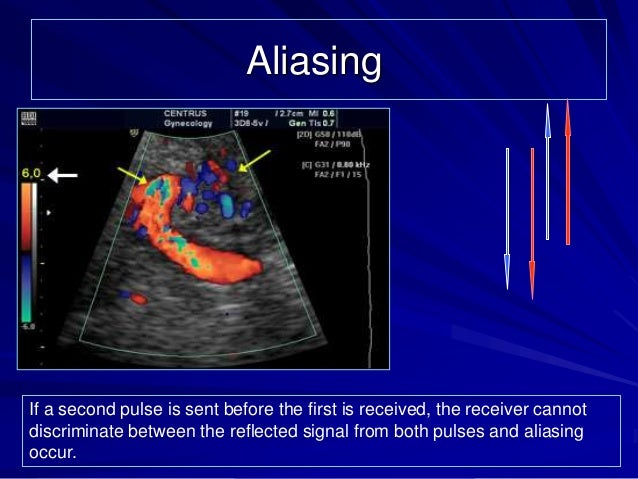Accuracy of dating ultrasound at 12 weeks 3