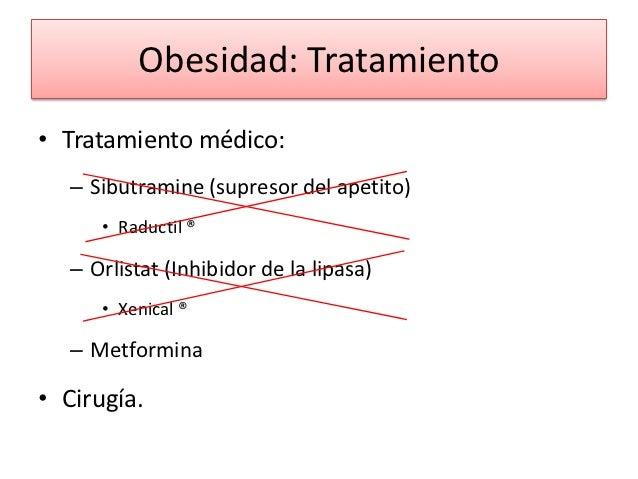 Obesidad en Pediatría
