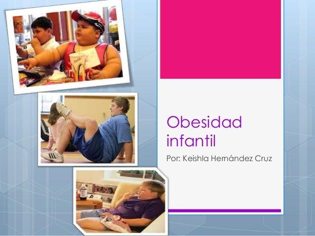 ObesidadinfantilPor: Keishla Hernández Cruz