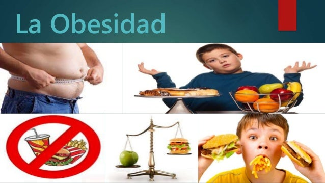 La Obesidad d