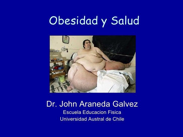 Obesidad y Salud Dr. John Araneda Galvez Escuela Educacion Fisica Universidad Austral de Chile