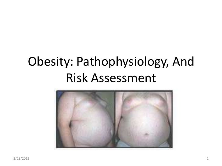 Obesity: Pathophysiology, And              Risk Assessment2/13/2012                               1